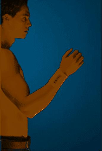 תמונה של אוריאל מגן יד Uriel Wrist Bandage